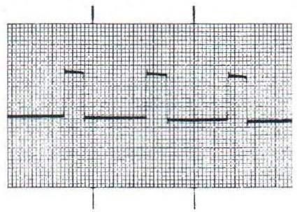 Запись калибровочного сигнала